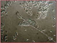 Spores of G. morbida